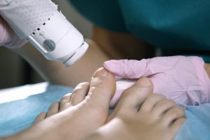 Marked Tree Podiatrist